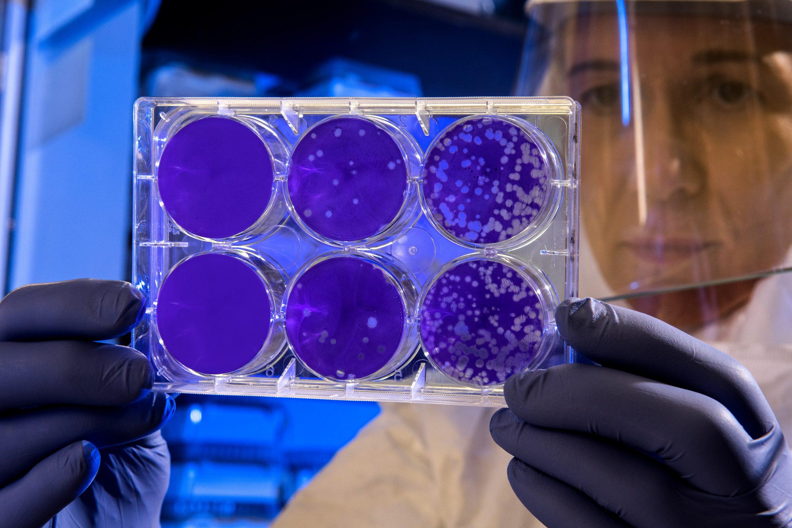 Koronawirus potwierdzony wPolsce…